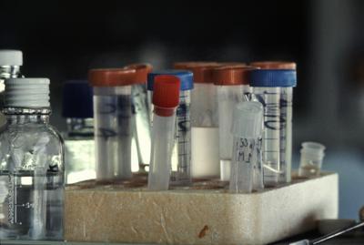 Aids, bimba guarita da Hiv: da 8 anni senza farmaci