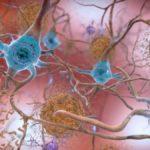 Alzheimer, nel virus herpes simplex un potenziale fattore di rischio