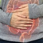 Tumore del colon-retto, la prevenzione non può aspettare